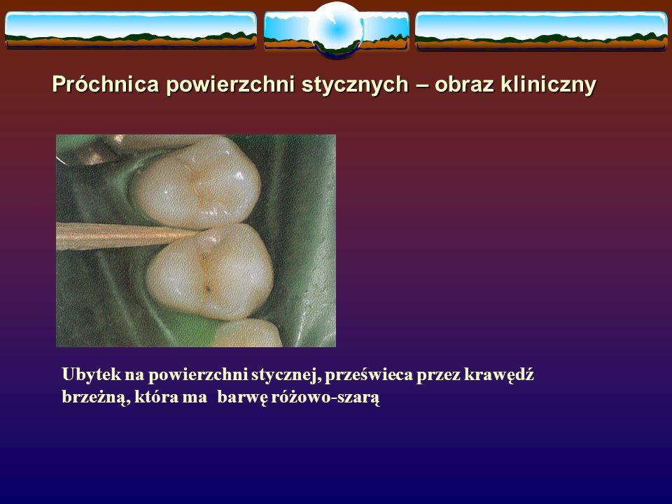 Próchnica powierzchni stycznych – obraz kliniczny Ubytek na powierzchni stycznej, prześwieca przez krawędź brzeżną, która ma barwę różowo-szarą