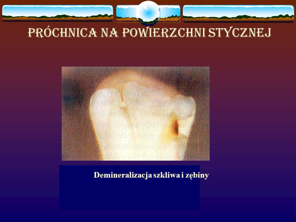 Próchnica na powierzchni stycznej Demineralizacja szkliwa i zębiny