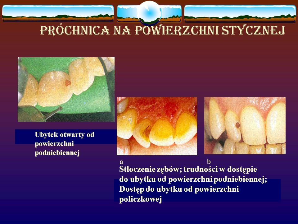 ab Ubytek otwarty od powierzchni podniebiennej Stłoczenie zębów; trudności w dostępie do ubytku od powierzchni podniebiennej; Dostęp do ubytku od powierzchni policzkowej