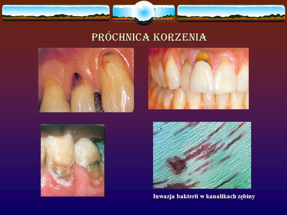 Inwazja bakterii w kanalikach zębiny