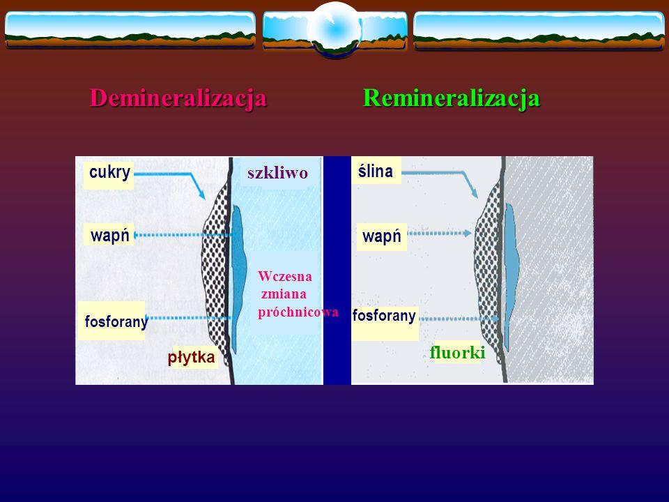 cukry wapń fosforany płytka Wczesna zmiana próchnicowa szkliwo ślina wapń fluorki fosforany Demineralizacja Remineralizacja