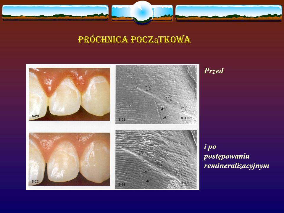 Próchnica pocz ą tkowa Przed i po postępowaniu remineralizacyjnym