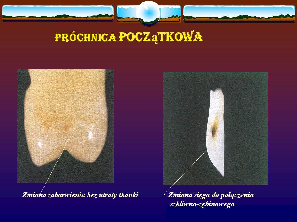 Próchnica pocz ą tkowa Zmiana sięga do połączenia szkliwno-zębinowego Zmiana zabarwienia bez utraty tkanki