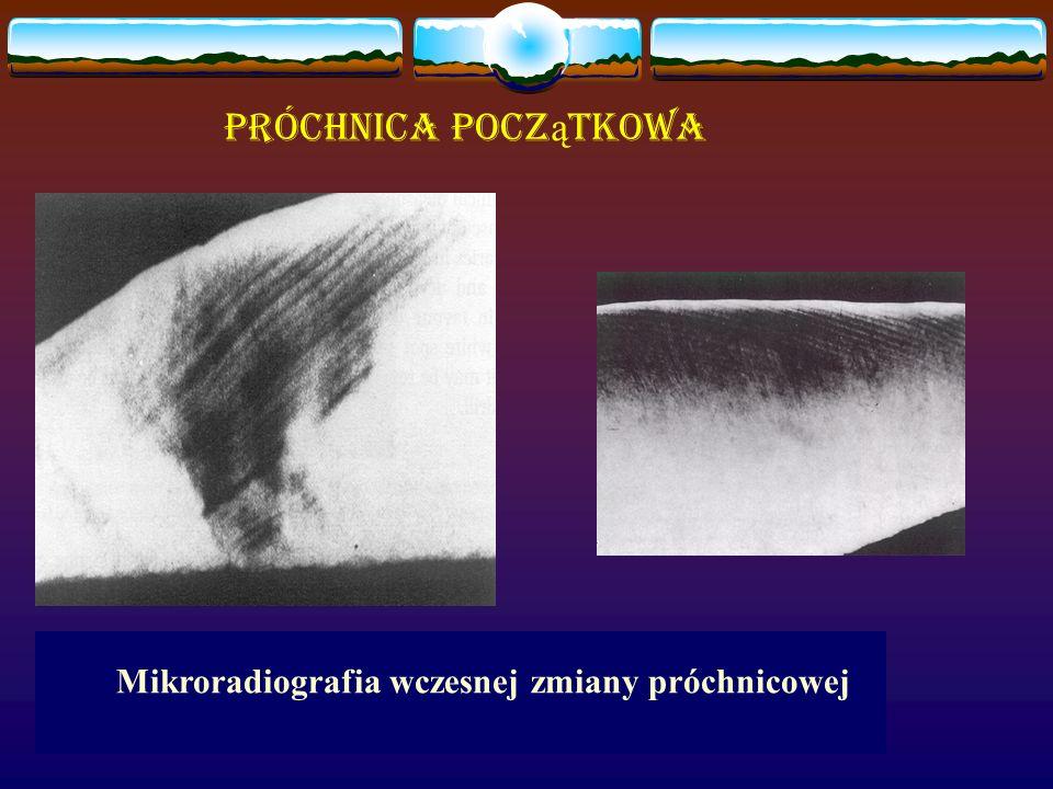 Mikroradiografia wczesnej zmiany próchnicowej Próchnica pocz ą tkowa