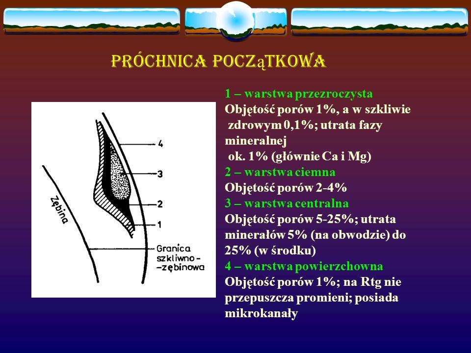 Próchnica Pocz ą tkowa 1 – warstwa przezroczysta Objętość porów 1%, a w szkliwie zdrowym 0,1%; utrata fazy mineralnej ok. 1% (głównie Ca i Mg) 2 – war