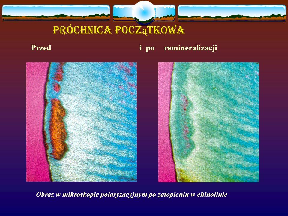 Próchnica Pocz ą tkowa Przed i po remineralizacji Obraz w mikroskopie polaryzacyjnym po zatopieniu w chinolinie