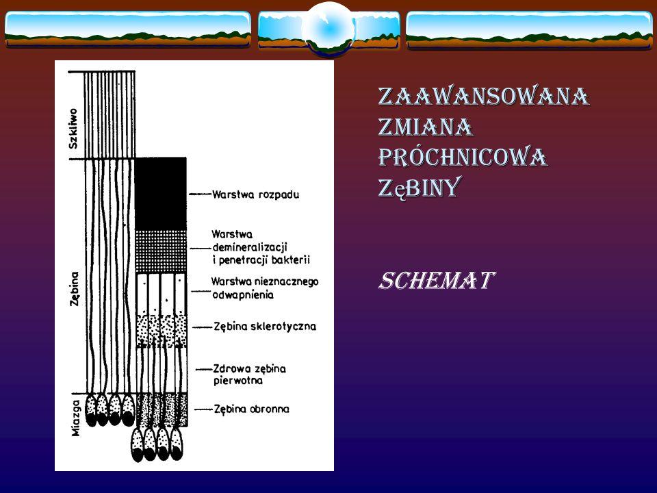 ZaawansowanaZmianaPróchnicowa Z ę biny schemat