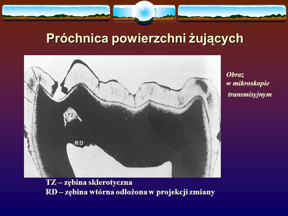 Próchnica powierzchni żujących TZ – zębina sklerotyczna RD – zębina wtórna odłożona w projekcji zmiany Obraz w mikroskopie transmisyjnym