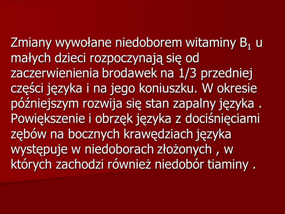 Zmiany wywołane niedoborem witaminy B 1 u małych dzieci rozpoczynają się od zaczerwienienia brodawek na 1/3 przedniej części języka i na jego koniuszk