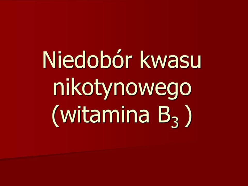 Niedobór kwasu nikotynowego (witamina B 3 )