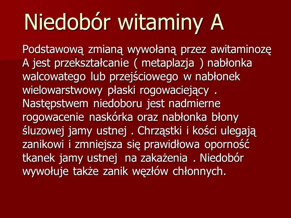 Niedobór witaminy A Podstawową zmianą wywołaną przez awitaminozę A jest przekształcanie ( metaplazja ) nabłonka walcowatego lub przejściowego w nabłonek wielowarstwowy płaski rogowaciejący.