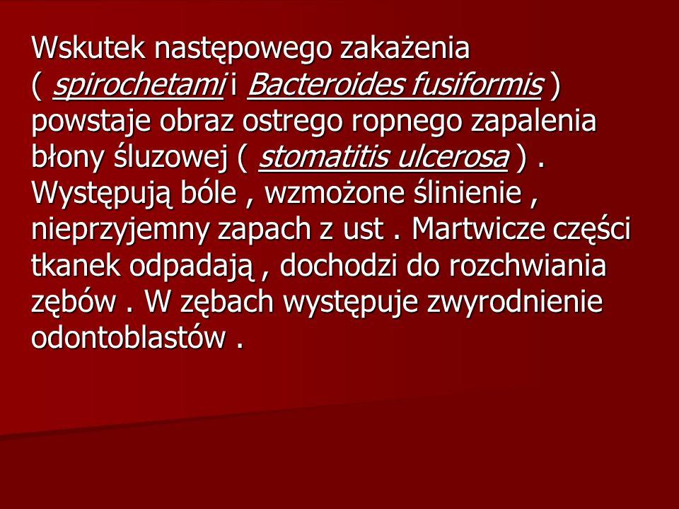Wskutek następowego zakażenia ( spirochetami i Bacteroides fusiformis ) powstaje obraz ostrego ropnego zapalenia błony śluzowej ( stomatitis ulcerosa