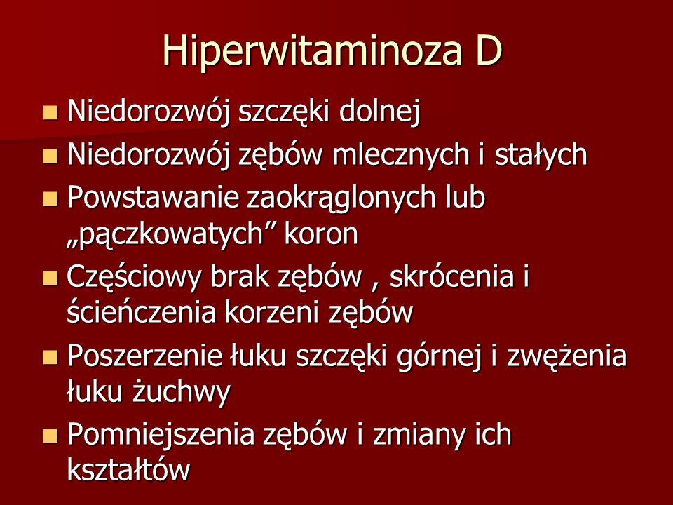 Hiperwitaminoza D Niedorozwój szczęki dolnej Niedorozwój szczęki dolnej Niedorozwój zębów mlecznych i stałych Niedorozwój zębów mlecznych i stałych Po