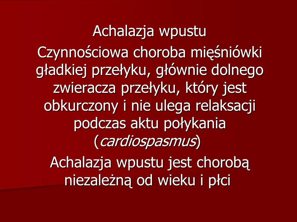 Achalazja wpustu Czynnościowa choroba mięśniówki gładkiej przełyku, głównie dolnego zwieracza przełyku, który jest obkurczony i nie ulega relaksacji podczas aktu połykania (cardiospasmus) Czynnościowa choroba mięśniówki gładkiej przełyku, głównie dolnego zwieracza przełyku, który jest obkurczony i nie ulega relaksacji podczas aktu połykania (cardiospasmus) Achalazja wpustu jest chorobą niezależną od wieku i płci Achalazja wpustu jest chorobą niezależną od wieku i płci