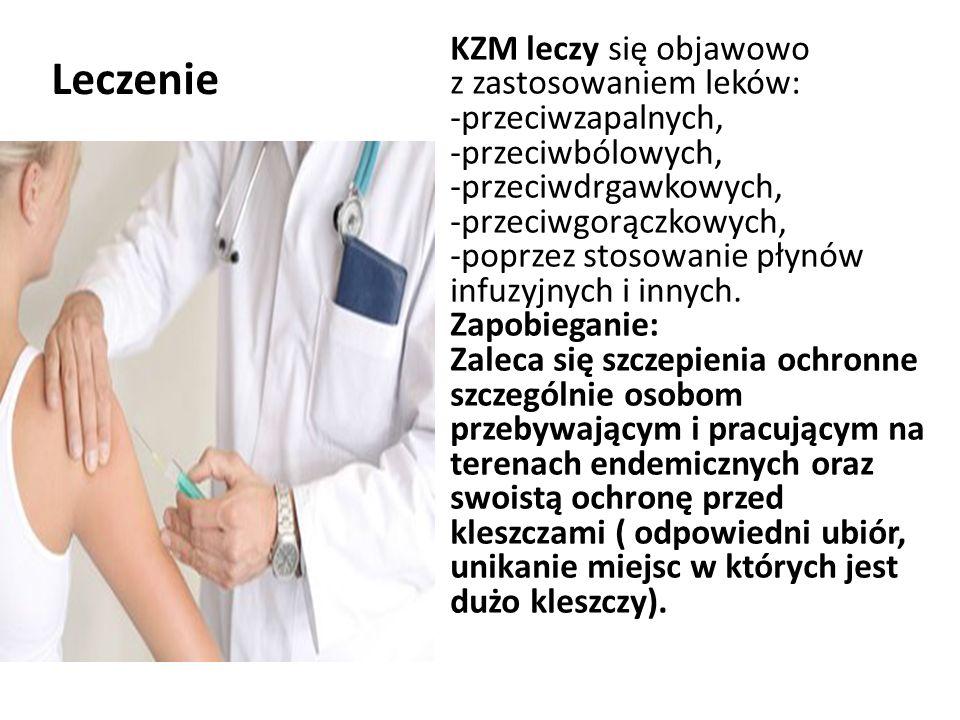 Leczenie KZM leczy się objawowo z zastosowaniem leków: -przeciwzapalnych, -przeciwbólowych, -przeciwdrgawkowych, -przeciwgorączkowych, -poprzez stosowanie płynów infuzyjnych i innych.
