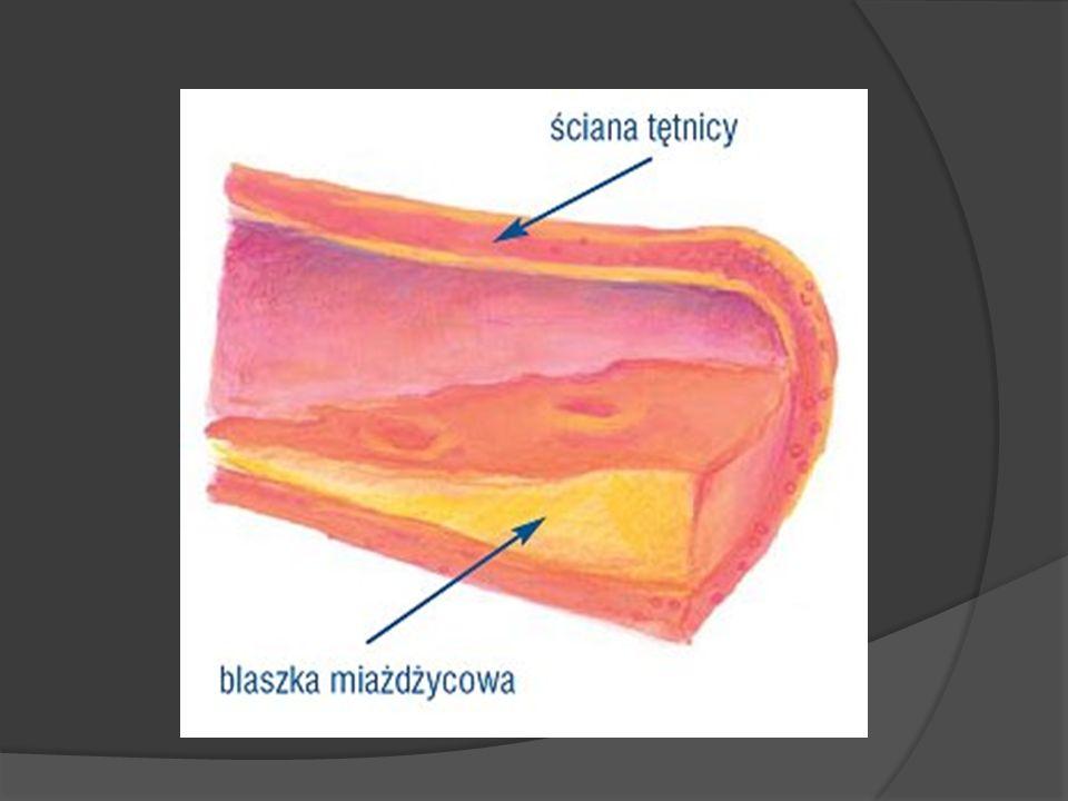 MIAŻDŻYCA Miażdżyca polega na odkładaniu się cholesterolu i innych lipidów w błonie wewnętrznej tętnic.