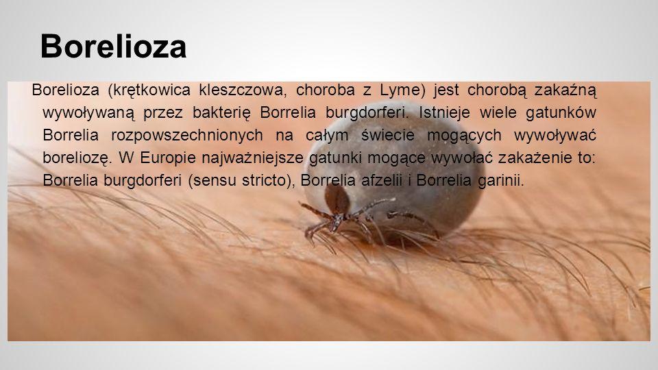 Borelioza Borelioza (krętkowica kleszczowa, choroba z Lyme) jest chorobą zakaźną wywoływaną przez bakterię Borrelia burgdorferi.
