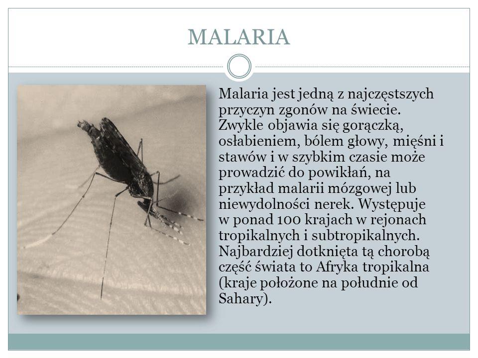 MALARIA Profilaktyka: unikanie ukąszeń komarów poprzez stosowanie środków odstraszających przebywanie w pomieszczeniach zamkniętych po zachodzie słońca, ponieważ komary wykazują największą aktywność w nocy stosowanie odpowiednich leków przeciwmalarycznych Obrzęk skóry i tkanki podskórnej spowodowany zespołem nerczycowym w przebiegu malarii.