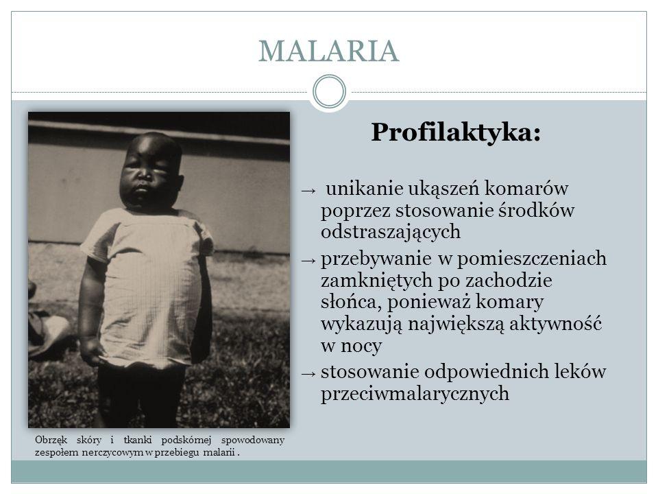 MALARIA Profilaktyka: unikanie ukąszeń komarów poprzez stosowanie środków odstraszających przebywanie w pomieszczeniach zamkniętych po zachodzie słońc