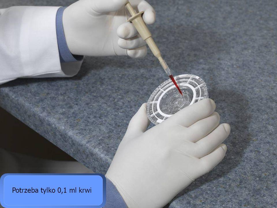 Położnictwo i ginekologia Lepsza opieka nad pacjentem –Diagnostyka i prognozowanie z pewnością opartą o kompleksowe badania –Unikanie niepotrzebnych opóźnień w rozpoczęciu terapii –Możliwość modyfikacji kuracji w oparciu o bieżące dane analityczne –Pewność próbki i wykonania badania przez utrzymanie stałego nadzoru Poprawa efektywności –Oszczędność czasu na przygotowaniu próbki do wysyłki –Nie tracisz czasu na powtórną wizytę pacjenta z wynikami i analizę przypadku –Lepsze wykorzystanie czasu spędzanego z pacjentami –Lepsza diagnostyka oszczędza czas i pieniądze Rozszerzenie zakresu usług –Analizy laboratoryjne na miejscu w ciągu kilku minut –Zwiększenie zadowolenia pacjentów dzięki pełnej obsłudze –97% najczęściej zlecanych badań biochemicznych –Możliwość uzyskania dodatkowych przychodów dzięki dodatkowej usłudze Wstecz