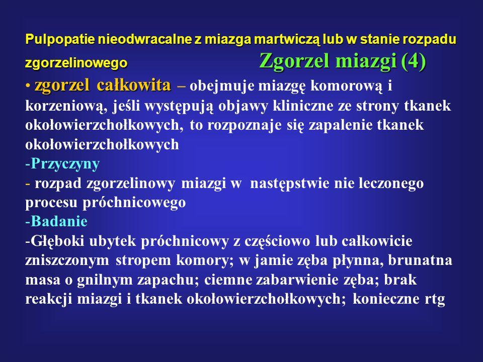 Pulpopatie nieodwracalne z miazga martwiczą lub w stanie rozpadu zgorzelinowego Zgorzel miazgi (4) zgorzel całkowita zgorzel całkowita – obejmuje miaz