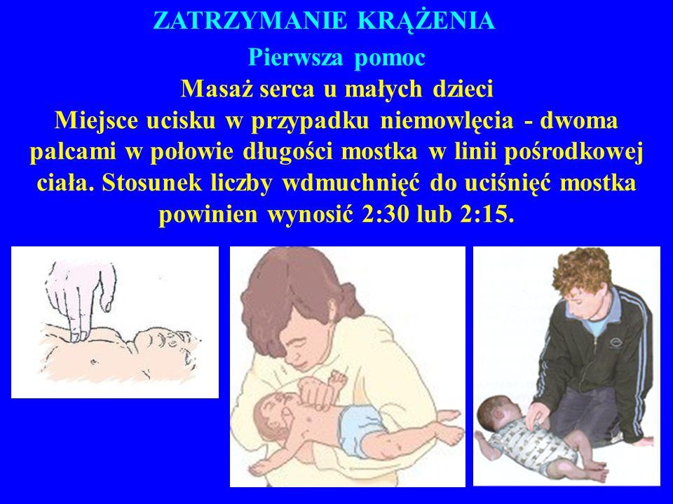 ZATRZYMANIE KRĄŻENIA Pierwsza pomoc Masaż serca u małych dzieci Miejsce ucisku w przypadku niemowlęcia - dwoma palcami w połowie długości mostka w linii pośrodkowej ciała.