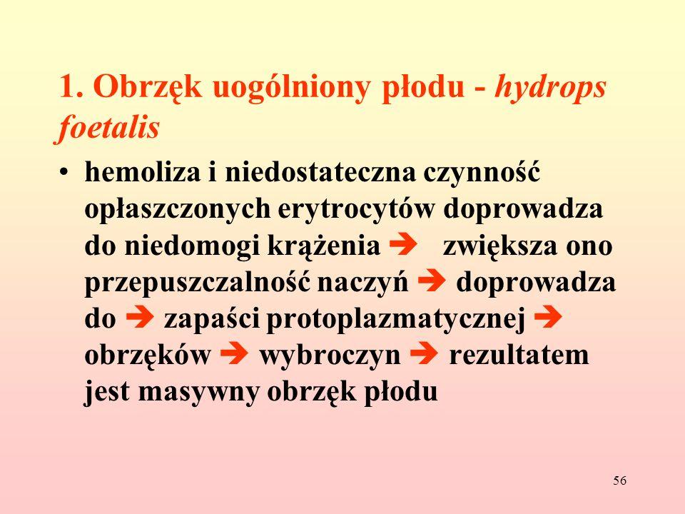 56 1. Obrzęk uogólniony płodu - hydrops foetalis hemoliza i niedostateczna czynność opłaszczonych erytrocytów doprowadza do niedomogi krążenia zwiększ