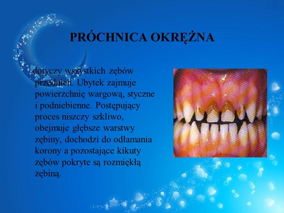 PRÓCHNICA OKRĘŻNA dotyczy wszystkich zębów przednich. Ubytek zajmuje powierzchnię wargową, styczne i podniebienne. Postępujący proces niszczy szkliwo,