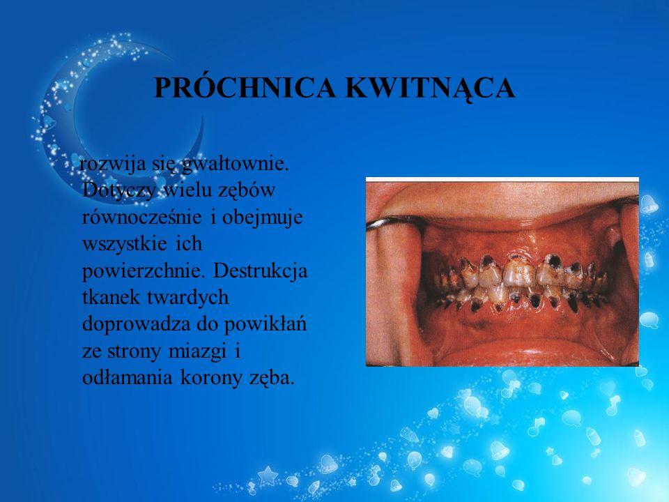 PRÓCHNICA KWITNĄCA rozwija się gwałtownie. Dotyczy wielu zębów równocześnie i obejmuje wszystkie ich powierzchnie. Destrukcja tkanek twardych doprowad