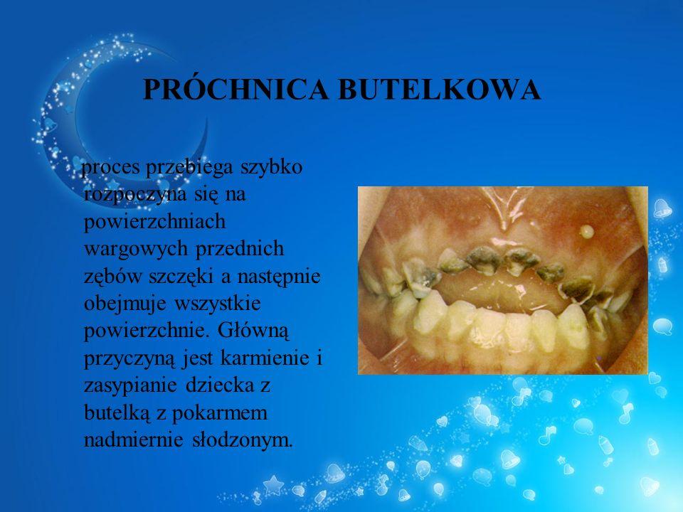 PRÓCHNICA BUTELKOWA proces przebiega szybko rozpoczyna się na powierzchniach wargowych przednich zębów szczęki a następnie obejmuje wszystkie powierzc