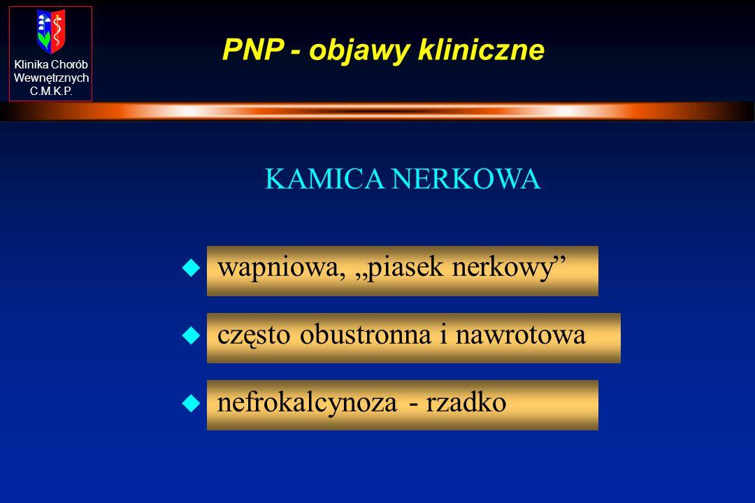 Klinika Chorób Wewnętrznych C.M.K.P. PNP - objawy kliniczne KAMICA NERKOWA u wapniowa, piasek nerkowy u często obustronna i nawrotowa u nefrokalcynoza