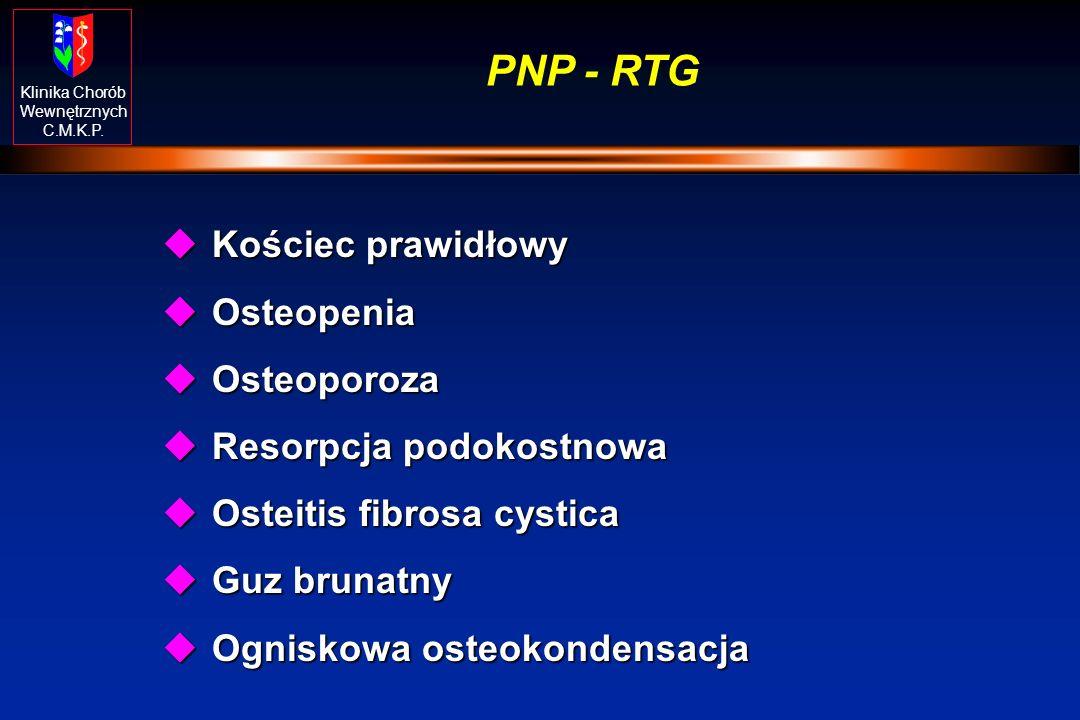 Klinika Chorób Wewnętrznych C.M.K.P. PNP - RTG uKościec prawidłowy uOsteopenia uOsteoporoza uResorpcja podokostnowa uOsteitis fibrosa cystica uGuz bru