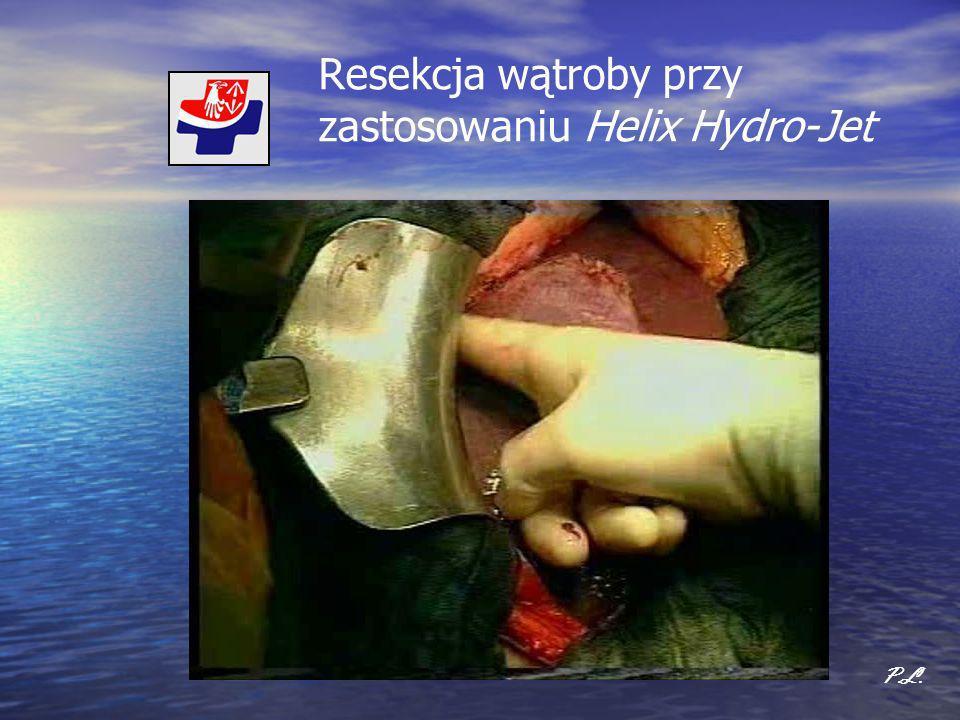 Resekcja wątroby przy zastosowaniu Helix Hydro-Jet P.L.