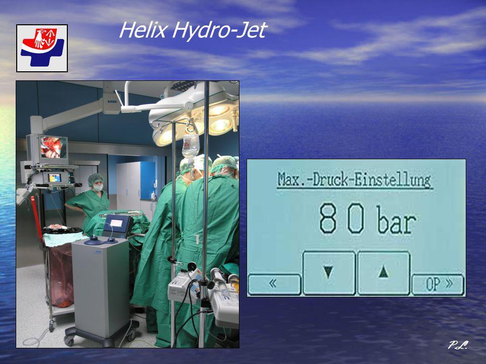 Badania przeprowadzone w Szpitalu Zachodnim ocena przydatności zastosowania noża wodnego (Helix Hydro Jet) w porównaniu z nożem ultradźwiękowym (CUSA) w resekcjach wątroby P.L.