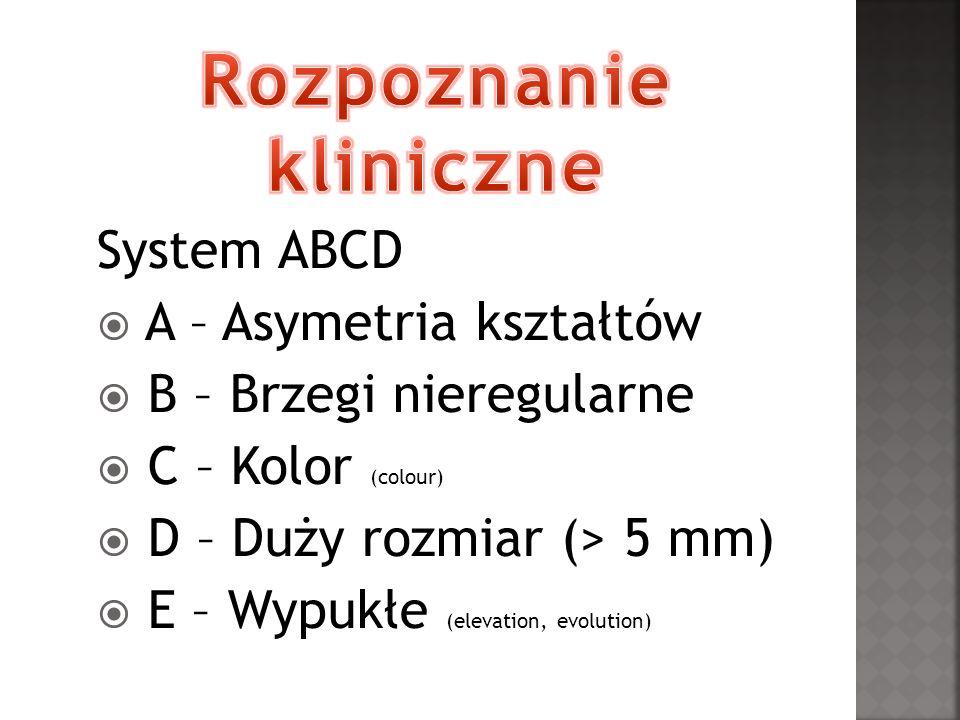 System ABCD A – Asymetria kształtów B – Brzegi nieregularne C – Kolor (colour) D – Duży rozmiar (> 5 mm) E – Wypukłe (elevation, evolution)