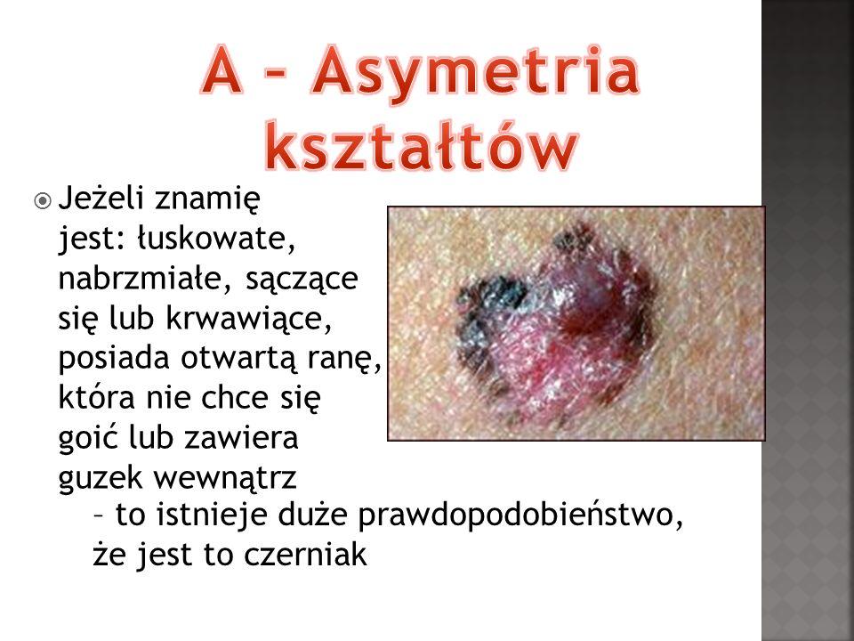 Jeżeli znamię jest: łuskowate, nabrzmiałe, sączące się lub krwawiące, posiada otwartą ranę, która nie chce się goić lub zawiera guzek wewnątrz – to is