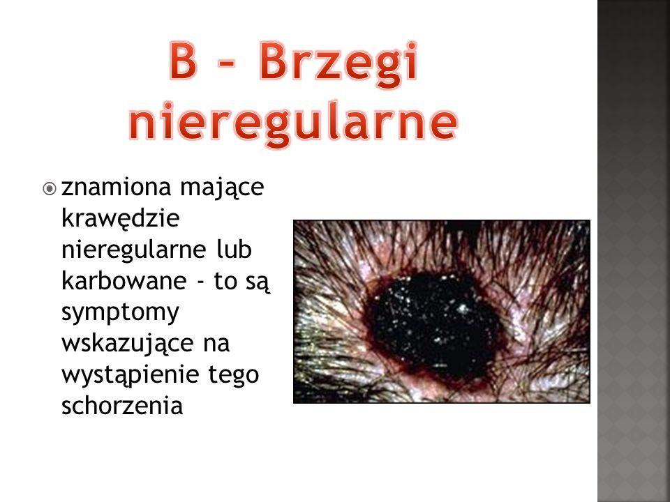 znamiona mające krawędzie nieregularne lub karbowane - to są symptomy wskazujące na wystąpienie tego schorzenia