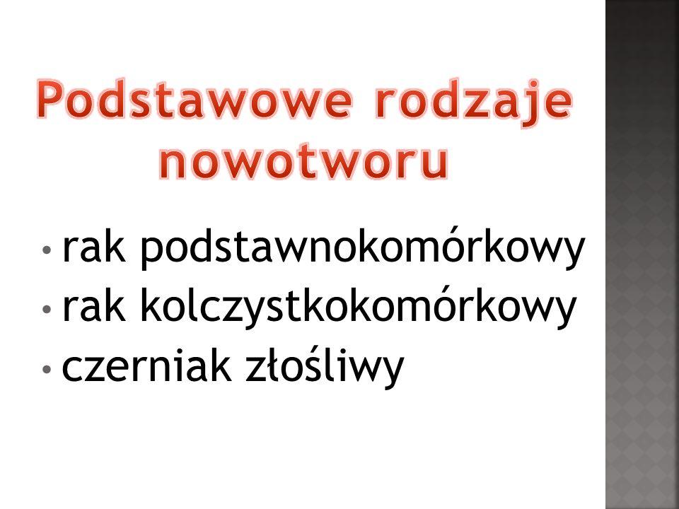 źródło : http://www.mamhakanaraka.pl/ http://czerniak.org.pl/zlosliwy/czerniak.html#more-3 http://stylelivebox.cloudblog.pl/wpis-znamiona-barwnikowe- czerniak-ochrona-sloneczna.html http://www.onkonet.pl/dp_czerniakzs2.html