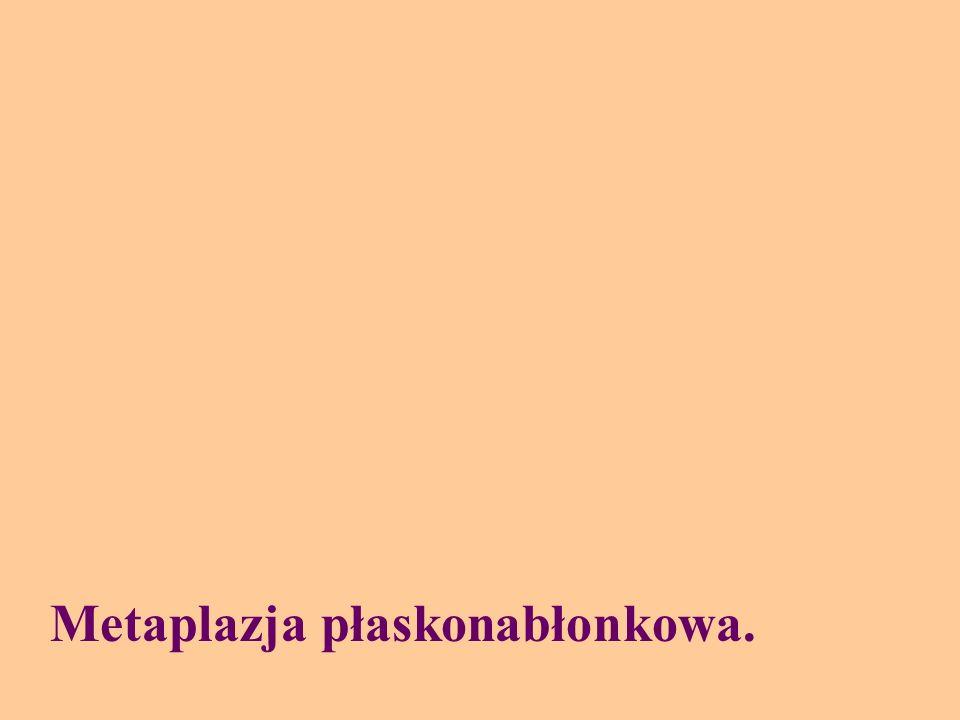 Metaplazja płaskonabłonkowa.