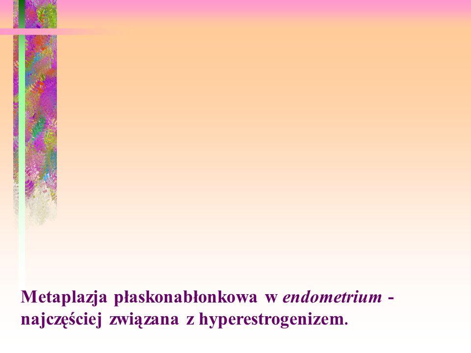 Metaplazja płaskonabłonkowa w endometrium - najczęściej związana z hyperestrogenizem.