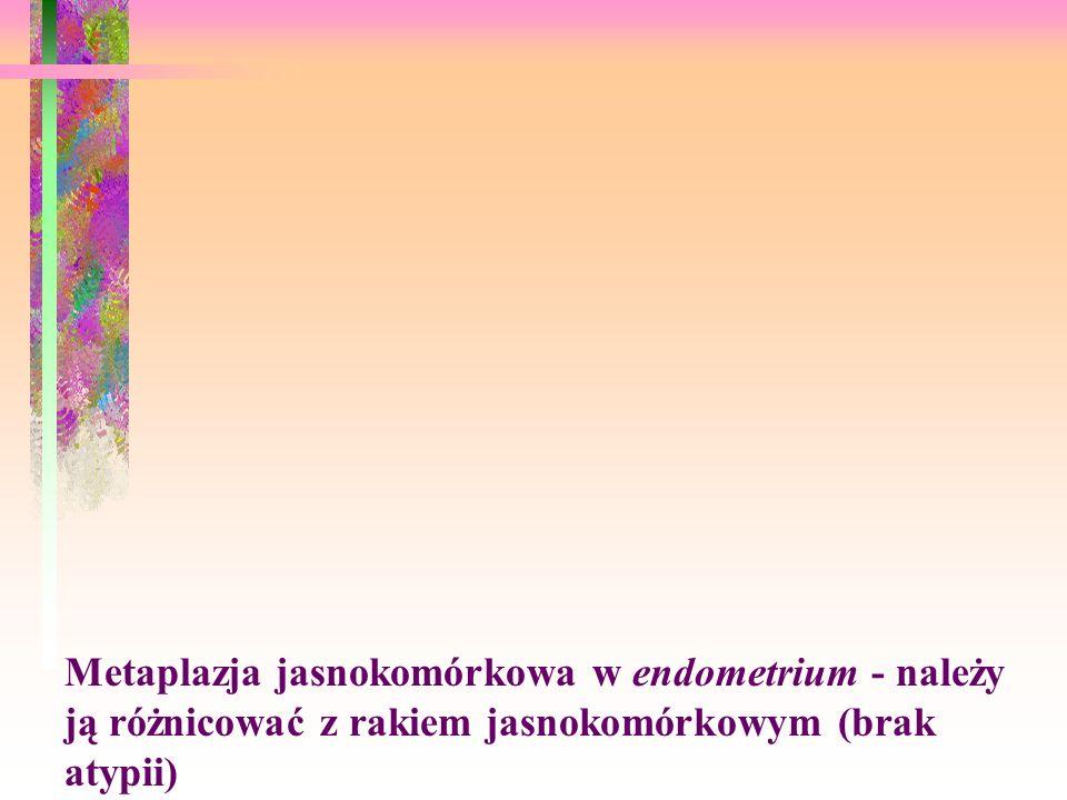 Metaplazja jasnokomórkowa w endometrium - należy ją różnicować z rakiem jasnokomórkowym (brak atypii)