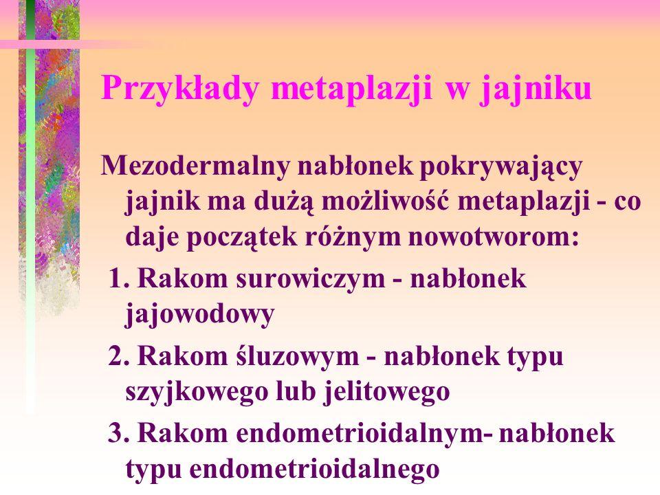 Przykłady metaplazji w jajniku Mezodermalny nabłonek pokrywający jajnik ma dużą możliwość metaplazji - co daje początek różnym nowotworom: 1.