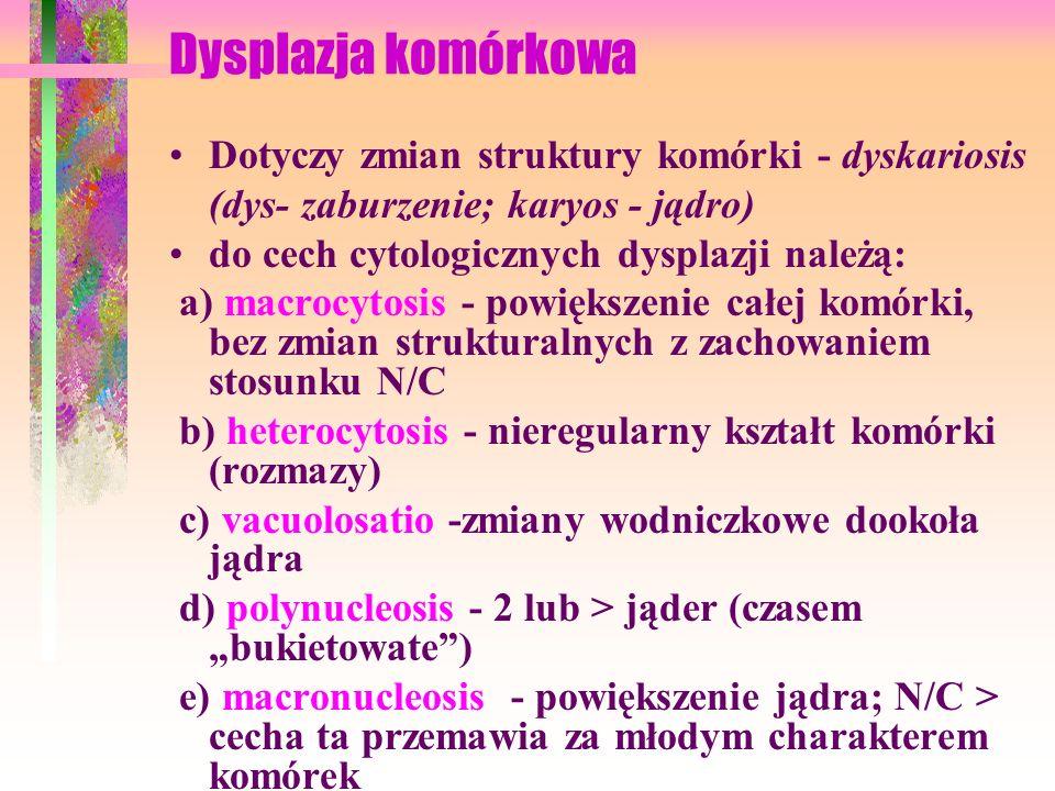 f) hyperchromatosis - nadbarwliwość jądra dotyczy silnego wysycenia jądra barwnikami zasadowymi, grudkowe zagęszczenie chromatyny oraz wysycenie błon jądrowych -zwiększenie DNA ; jest poważnym zaburzeniem struktury jądra; g) hypernucleosis - jest to macronucleosis i hyperchromatosis Podana kolejność zmian w komórce odpowiada coraz to większemu uszkodzeniu komórek; Zaburzenia w budowie jądra świadczą zawsze o poważnym procesie, które może doprowadzić do raka.