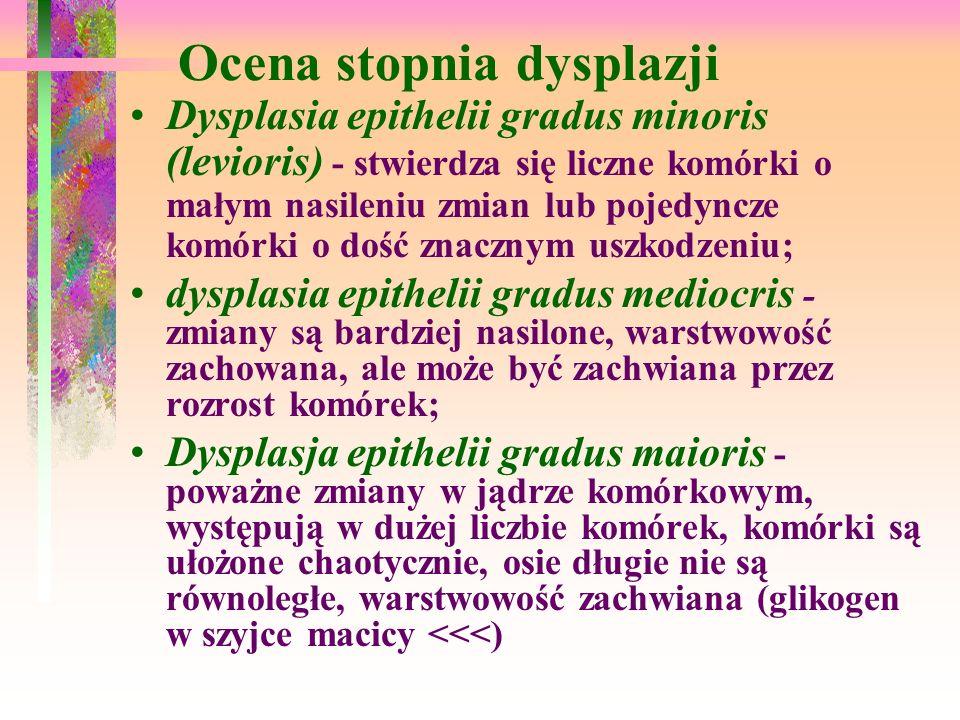 Ocena stopnia dysplazji Dysplasia epithelii gradus minoris (levioris) - stwierdza się liczne komórki o małym nasileniu zmian lub pojedyncze komórki o