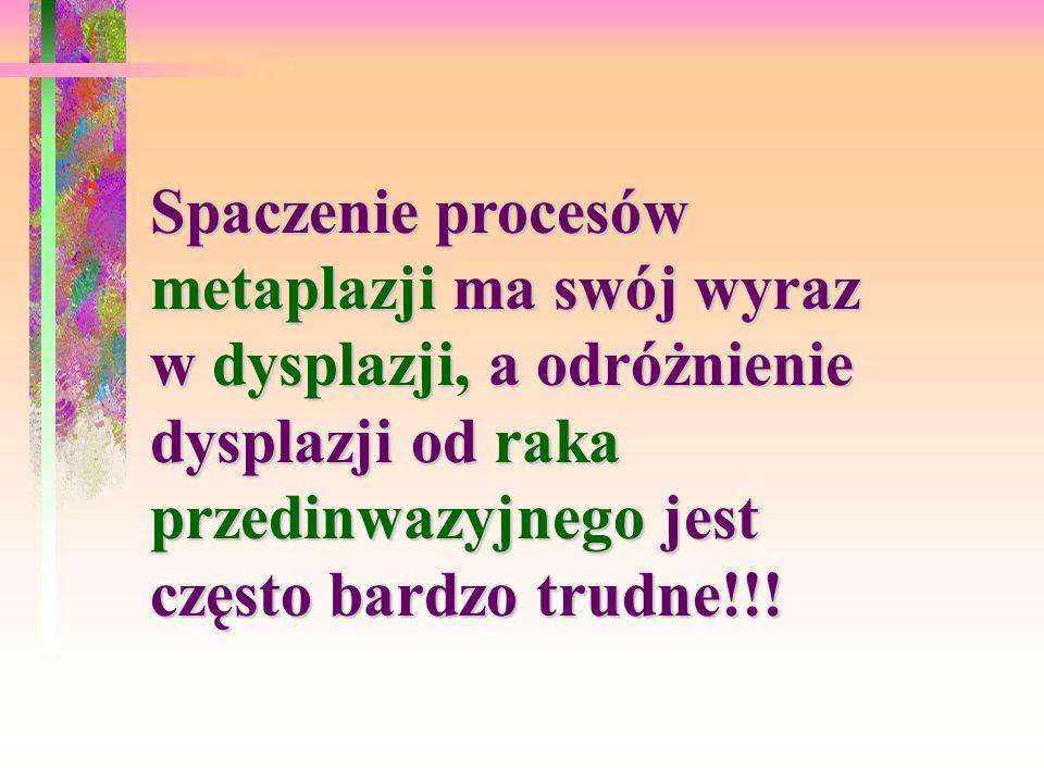 Spaczenie procesów metaplazji ma swój wyraz w dysplazji, a odróżnienie dysplazji od raka przedinwazyjnego jest często bardzo trudne!!!