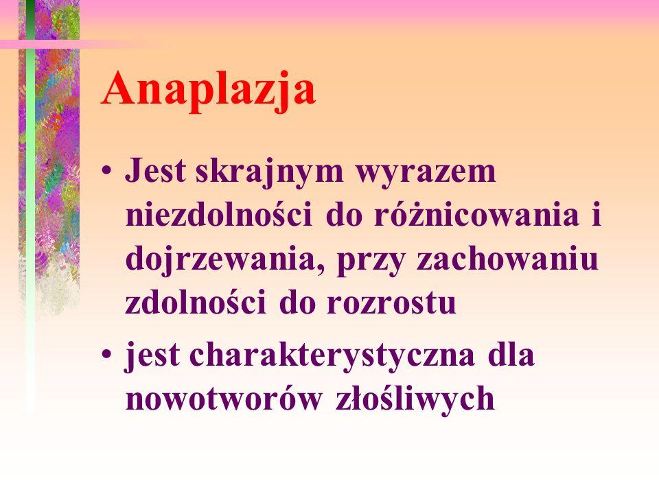 Anaplazja Jest skrajnym wyrazem niezdolności do różnicowania i dojrzewania, przy zachowaniu zdolności do rozrostu jest charakterystyczna dla nowotworów złośliwych