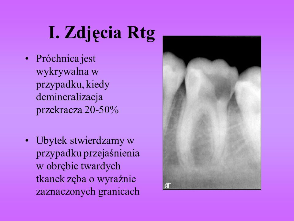 I. Zdjęcia Rtg Próchnica jest wykrywalna w przypadku, kiedy demineralizacja przekracza 20-50% Ubytek stwierdzamy w przypadku przejaśnienia w obrębie t