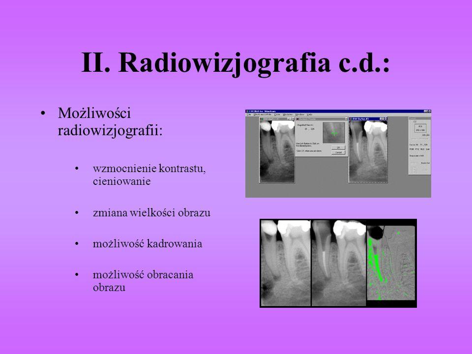 II. Radiowizjografia c.d.: Możliwości radiowizjografii: wzmocnienie kontrastu, cieniowanie zmiana wielkości obrazu możliwość kadrowania możliwość obra