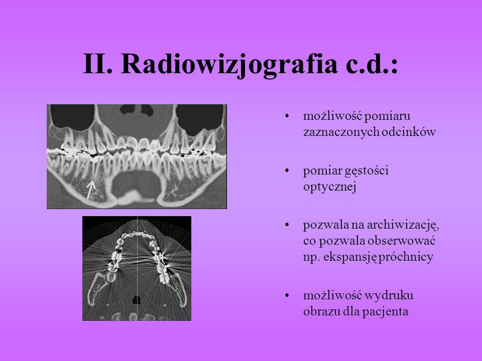 II. Radiowizjografia c.d.: możliwość pomiaru zaznaczonych odcinków pomiar gęstości optycznej pozwala na archiwizację, co pozwala obserwować np. ekspan