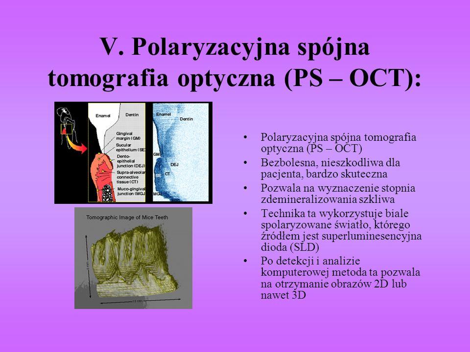 V. Polaryzacyjna spójna tomografia optyczna (PS – OCT): Polaryzacyjna spójna tomografia optyczna (PS – OCT) Bezbolesna, nieszkodliwa dla pacjenta, bar